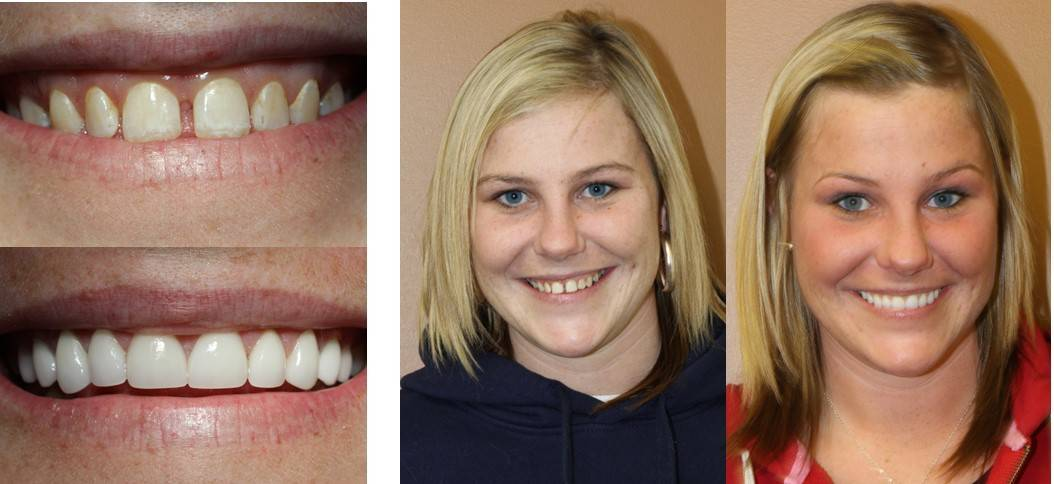 Simply Dental in Fishers, IN